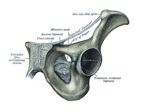 Schambeinentzündung (osteitis pubis)