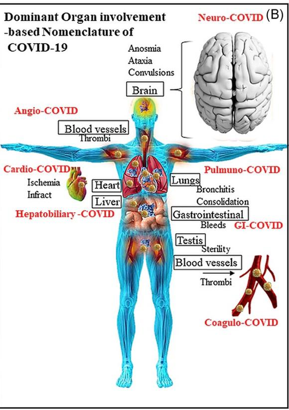 chronisches-covid-syndrom